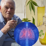 The Benefits of CBD Oil for Lung Cancer