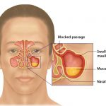 How to Deal With Symptoms of Major Sinusitis Until I Can Get to the Doctor