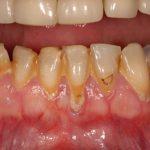 Gum Disease Cause, Prevention, Treatment