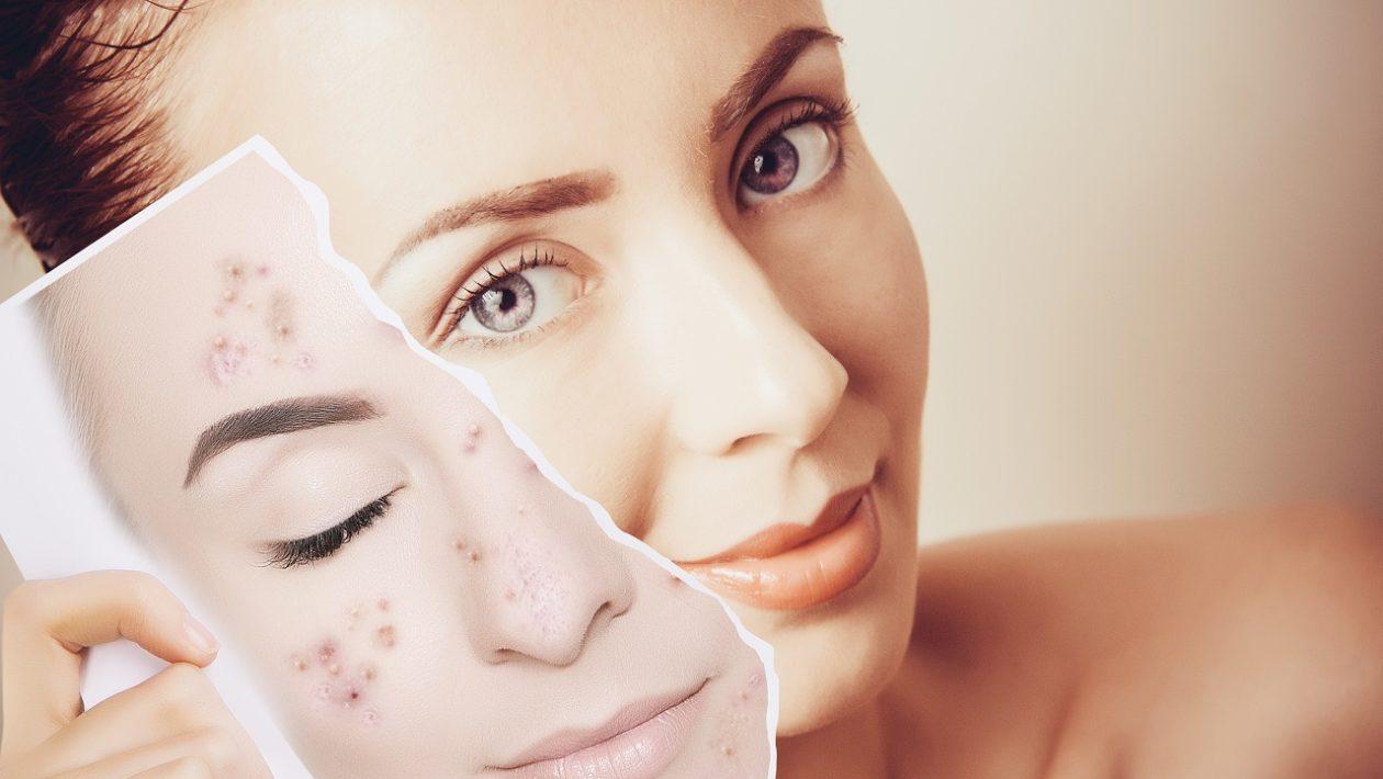 Get-Acne-Free-Skin