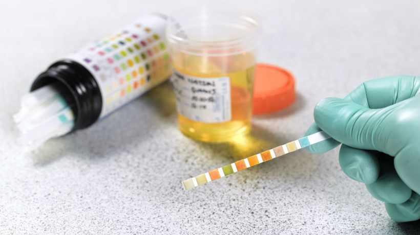 Medications Can Result in False Positive Urine Drug Test